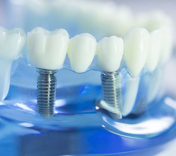 Gibbsboro Dental Implants